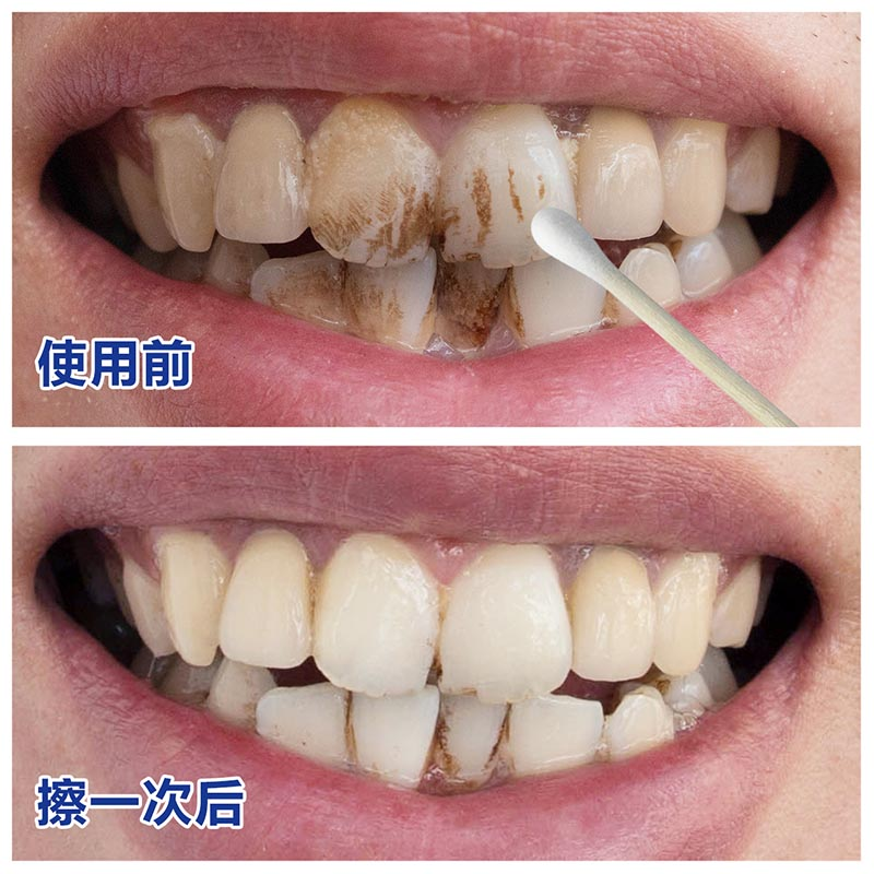 The explosion of teeth cleaning Ling Bai yellow teeth black teeth clean and white teeth whitening agent plaque net liniment