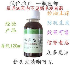 防止脱发掉发脂溢性生发液精华剂